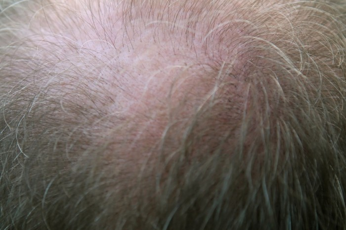 How to choose the right hair replacement system for thinning or balding hair loss...