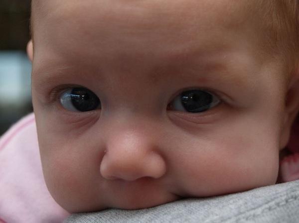 BirthInjuryGP birth injury