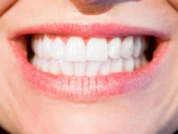White clean dentures for a confident smile #EfferdentSavings